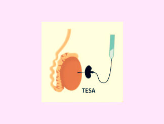 Testicular Sperm Aspiration (TESA): Get Infertility Treatment from Dr.Jasmine Kaur Dahyia-IVF, Infertility & Test Tube Baby Specialist