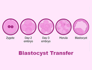 Blastocyst Transfer: Get Infertility Treatment from Dr.Jasmine Kaur Dahyia-IVF, Infertility & Test Tube Baby Specialist